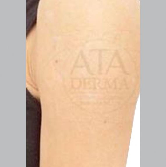 След естетическа интервенция на кожата с PicoSure (снимка)