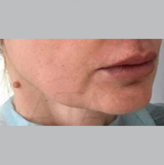 Преди естетическа интервенция на кожата с ULTHERA (снимка)