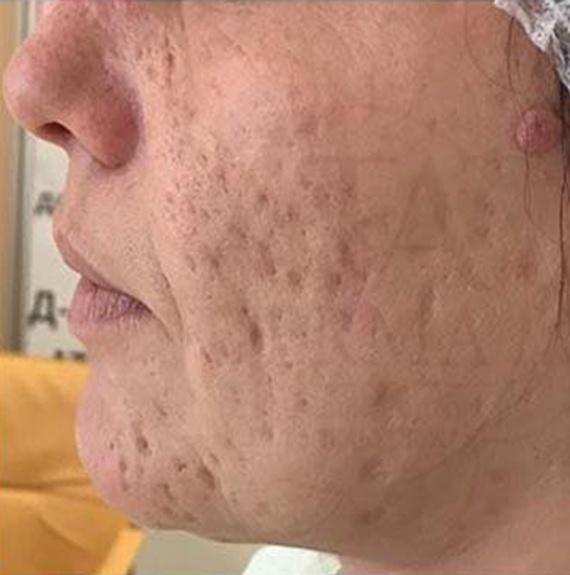 Преди естетическа интервенция на кожата с CO2RE лазер (снимка)
