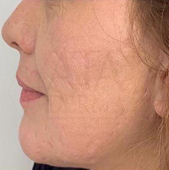 След естетическа интервенция на кожата с CO2RE лазер (снимка)
