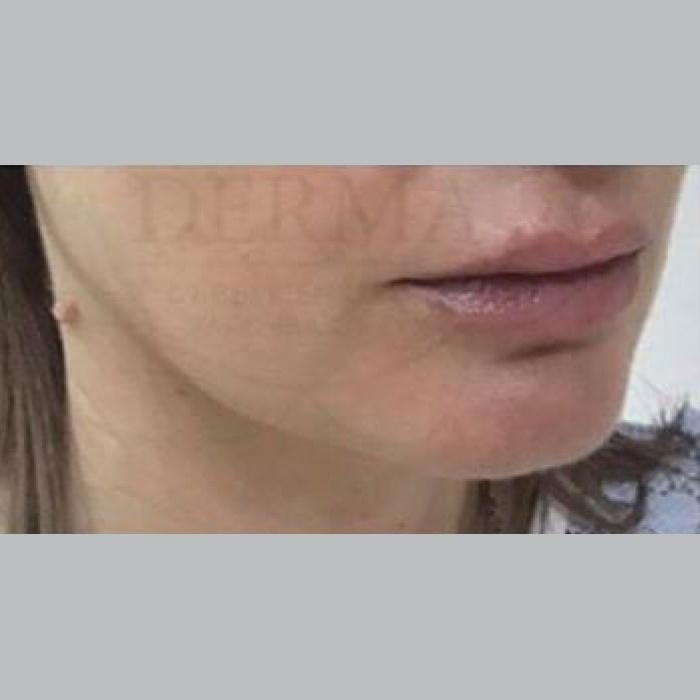 След естетическа интервенция на кожата с ULTHERA (снимка)