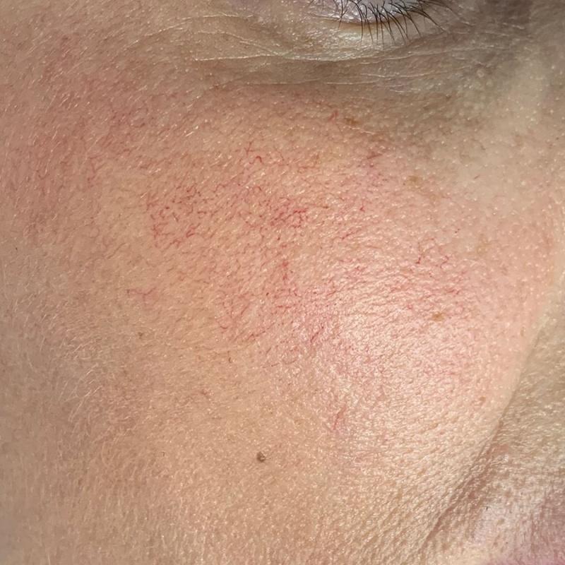 След естетическа интервенция на кожата с VBEAM PRIMA (снимка)