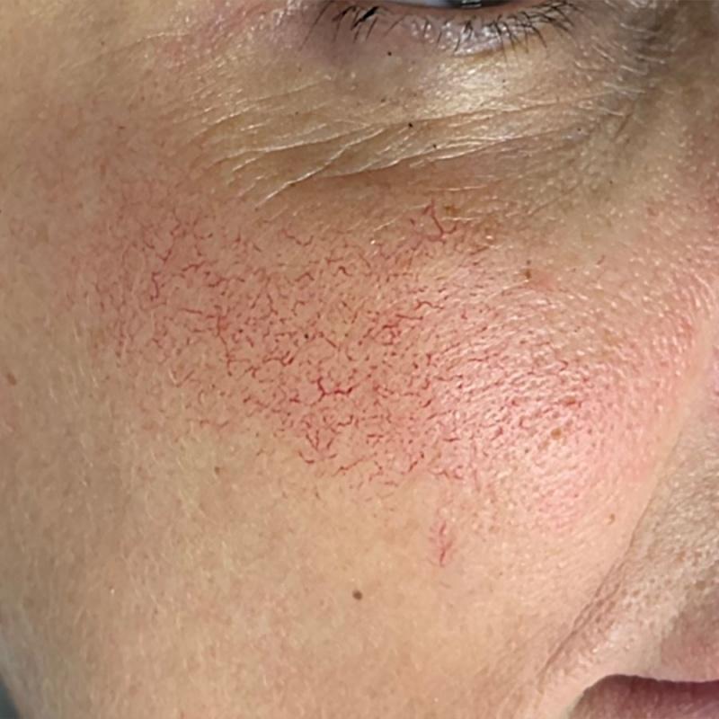 Преди естетическа интервенция на кожата с VBEAM PRIMA (снимка)