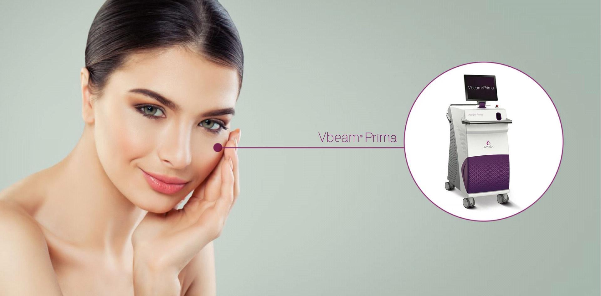 Колаж с лазер VBEAM PRIMA